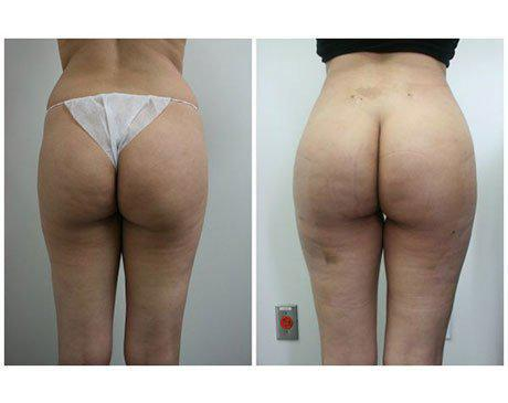 Brazilian Butt Lift Before After - Dr. Youssef Younique Surgery