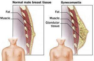 Gynecomastia Los Angeles