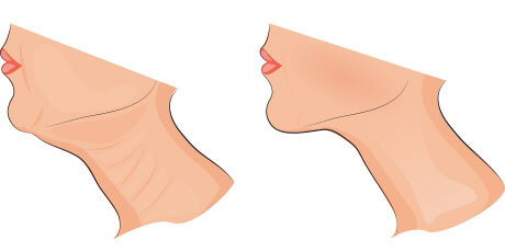 Before and After Kybella Drawing