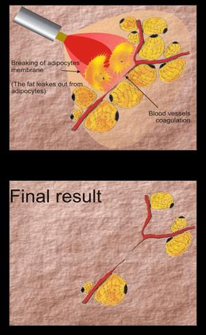 Laser Energy Effect On The Skin