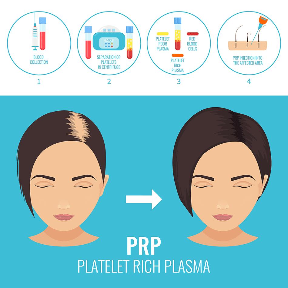 PRP Hair Rejuvenation Process
