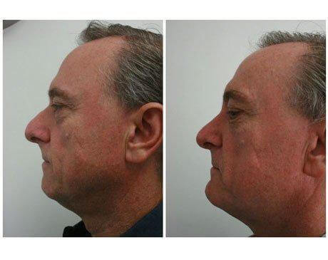 Case 10169 - Rhinoplasty Gallery (Before & After) (2)