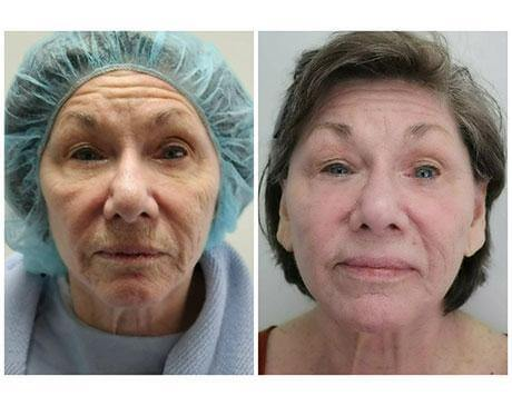 Case 10611 - Stem Cell Face Lift Gallery (Before & After) (2)