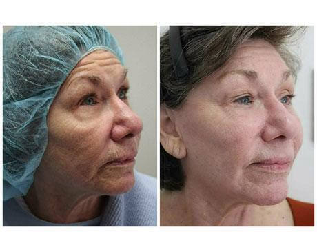 Case 10611 - Stem Cell Face Lift Gallery (Before & After)