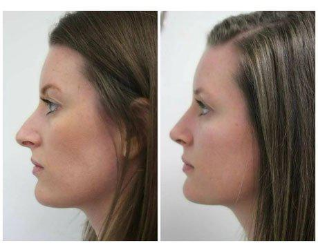 Case 10713 - Rhinoplasty Gallery (Before & After) (2)