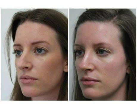 Case 10713 - Rhinoplasty Gallery (Before & After) (3)