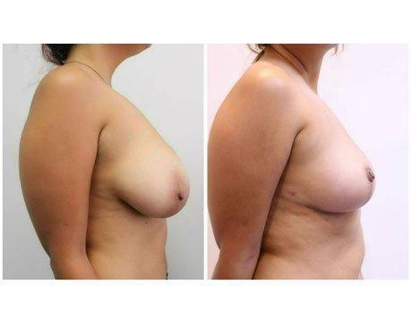 Case 11062 - Breast Lift and Reduction Gallery (Before & After) (2)