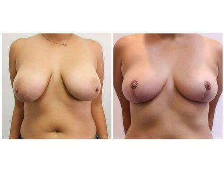 Case 11062 - Breast Lift and Reduction Gallery (Before & After)