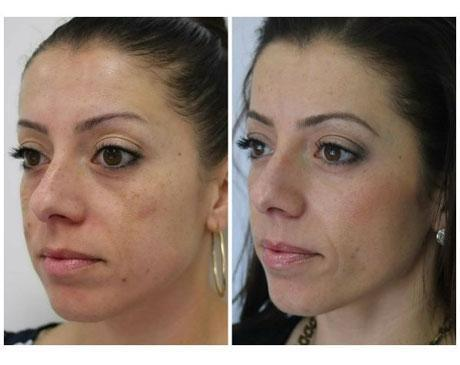 Case 11140 - Chemical Peels Gallery (Before & After) (2)