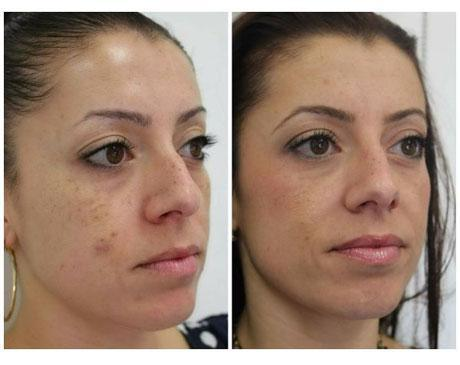 Case 11140 - Chemical Peels Gallery (Before & After) (3)