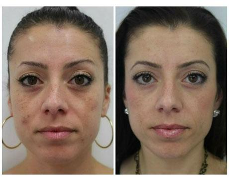 Case 11140 - Chemical Peels Gallery (Before & After)