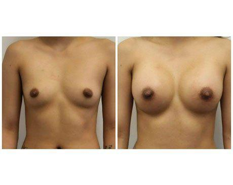 Case 11252 - Breast Augmentation Gallery (Before & After)