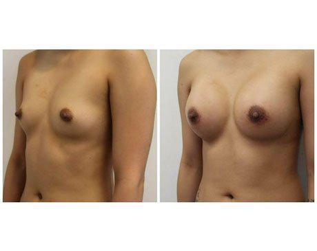 breast pictures before and after