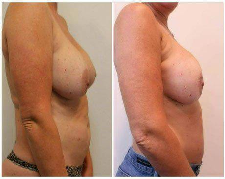 Case 11342 - Breast Lift and Reduction Gallery (Before & After) (2)