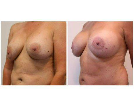 Case 11342 - Breast Lift and Reduction Gallery (Before & After) (3)