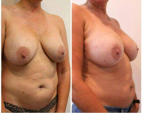 Case 11342 - Breast Lift and Reduction Gallery (Before & After) (4)