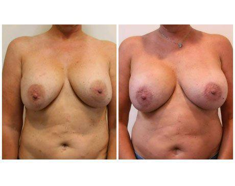 Case 11342 - Breast Lift and Reduction Gallery (Before & After)