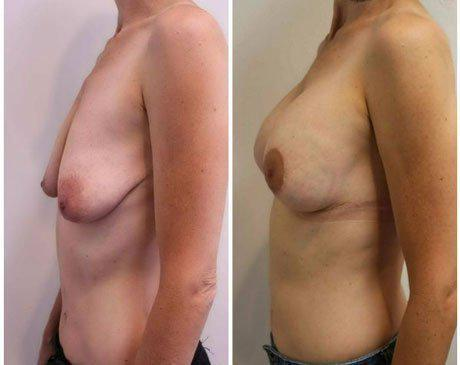 Case 11365 - Breast Lift and Reduction Gallery (Before & After)