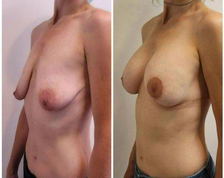 Breast Lift Gallery (Before & After)