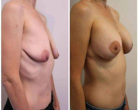 Breast Lift photos side 4