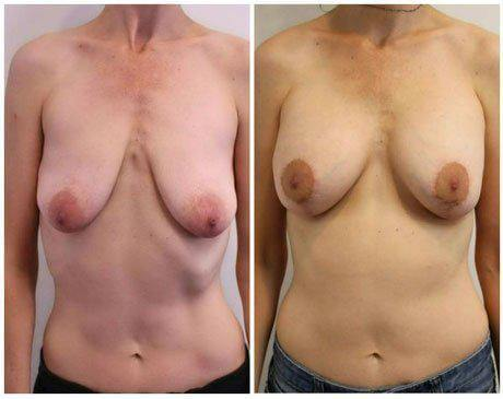 Breast Lift and augmentation photos