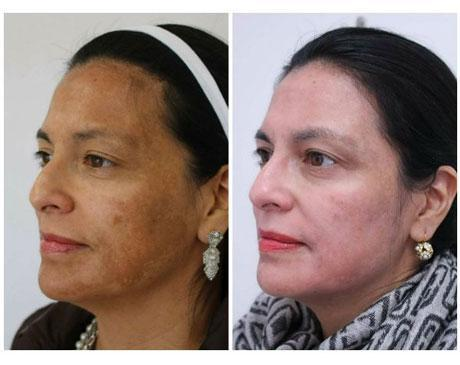 Case 11752 - Chemical Peels Gallery (Before & After) (2)