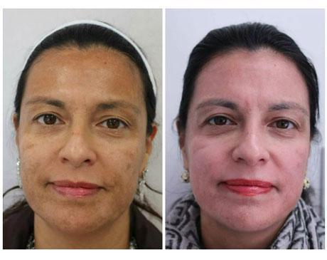 Case 11752 - Chemical Peels Gallery (Before & After)