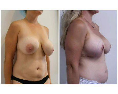 Case 11776 - Breast Lift and Reduction Gallery (Before & After) (2)
