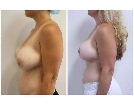 Case 11776 - Breast Lift and Reduction Gallery (Before & After) (3)
