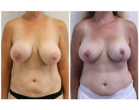 Case 11776 - Breast Lift and Reduction Gallery (Before & After)
