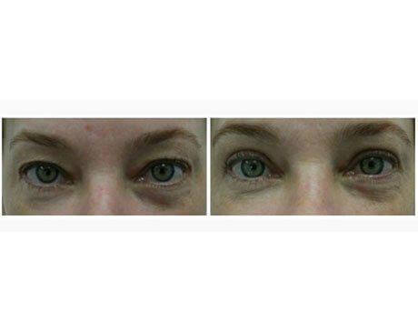 Case 1185 - Blepharoplasty Gallery (Before & After)