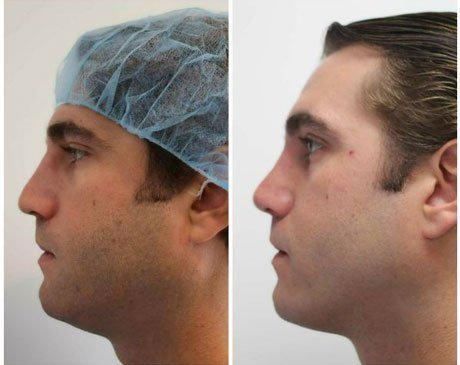 Case 11910 - Rhinoplasty Gallery (Before & After) (2)