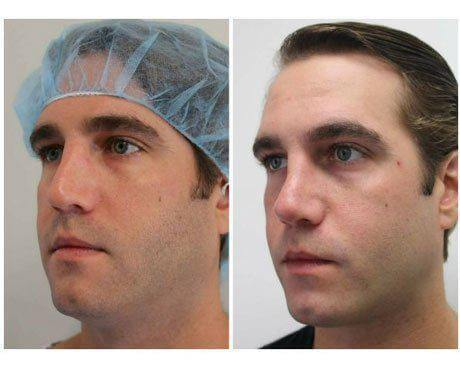 Case 11910 - Rhinoplasty Gallery (Before & After) (3)
