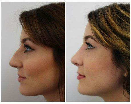 Case 12115 - Rhinoplasty Gallery (Before & After) (3)