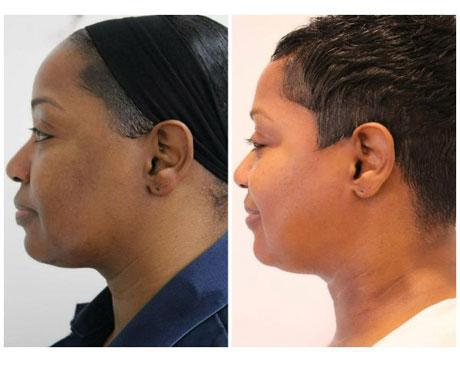 Case 12233 - Chemical Peels Gallery (Before & After) (2)