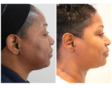 Case 12233 - Chemical Peels Gallery (Before & After) (3)