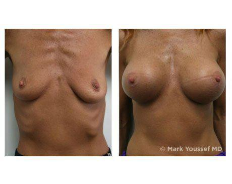 Case 1344 - Breast Augmentation Gallery (Before & After)