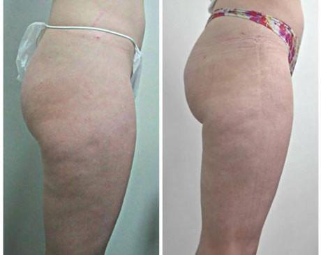 Case 1355 - Liposuction Gallery (Before & After) (2)