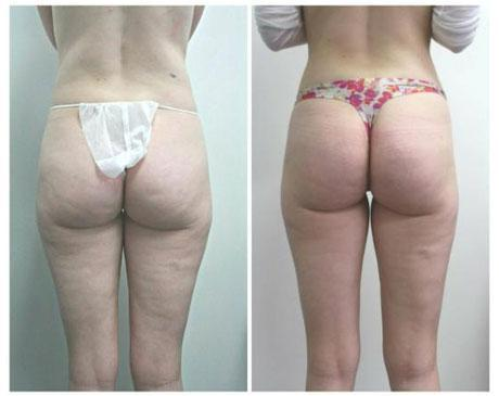 Case 1355 - Liposuction Gallery (Before & After)