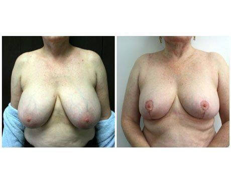 Case 1368 - Breast Lift and Reduction Gallery (Before & After) (2)