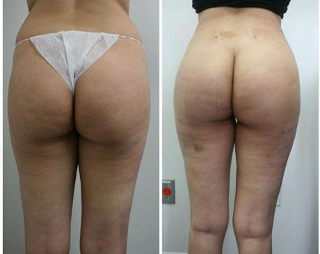 Case 1438 - Liposuction Gallery (Before & After)