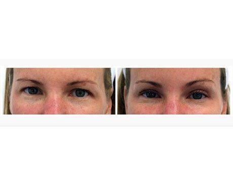 Case 1661 - Blepharoplasty Gallery (Before & After)