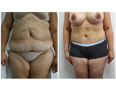 Case 1725 - Tummy Tuck Gallery (Before & After)