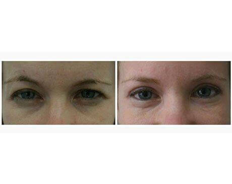 Case 1755 - Blepharoplasty Gallery (Before & After)