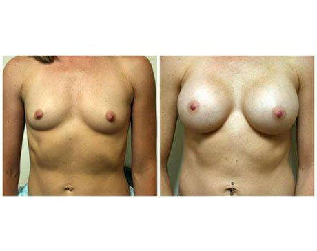 Case 1888 - Breast Augmentation Gallery (Before & After)