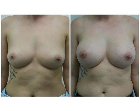Case 203 - Breast Augmentation Gallery (Before & After)