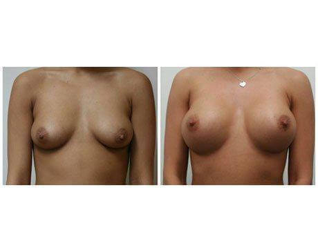Case 2414 - Breast Augmentation Gallery (Before & After)