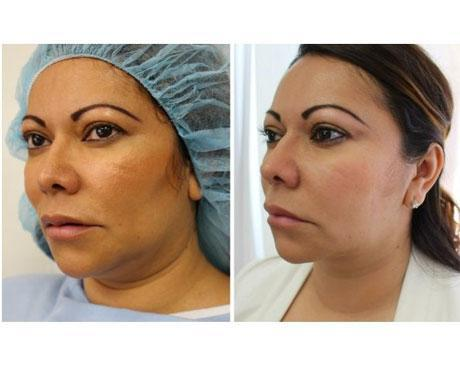 Case 2477 - Liposuction Gallery (Before & After) (2)