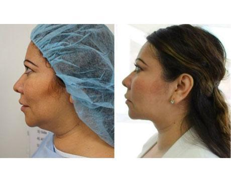 Case 2477 - Liposuction Gallery (Before & After)