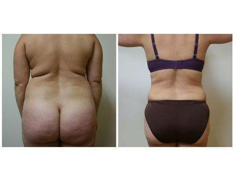 Case 26 - Liposuction Gallery (Before & After) (2)